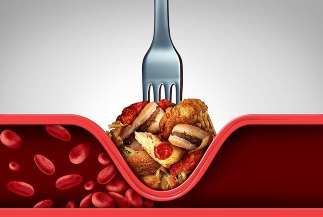 9 hlavních příznaků vysokého cholesterolu