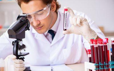 Tipy, jak na domácí test na cholesterol, snadno a rychle